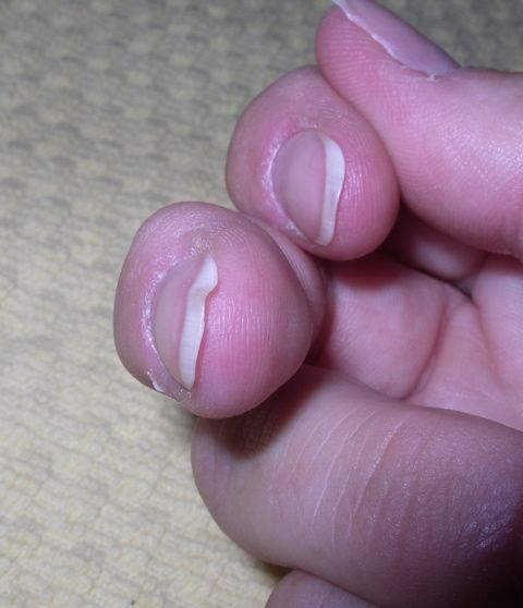 Fingernail Analysis  VERY Interesting