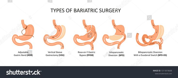 Types of bariatric surgery. Stomach reduction #Ad …