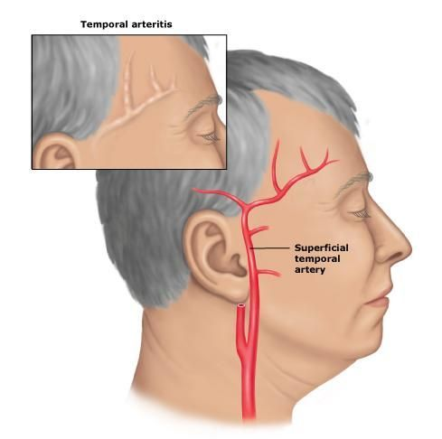 """Temporal Arteritis  literally means """"inflammation of the temporal arteries"""