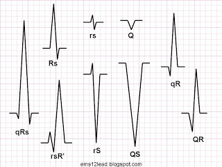 Right Bundle Branch Block | EMS 12-lead. The last wave of a QRS complex is the terminal wave, or terminal deflection. If a QRS complex ends in an R wave, then it has a terminal R wave. It can also be said that the terminal deflection is positive.