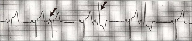 [What are those funny looking beats????]{Frank G. Yanowitz, M.D.}The differential diagnosis of funny-looking-beats, or FLB's, primarily considers beats of supraventricular origin with aberrant conduction and ventricular ectopic beats. In this example the two FLB's have an easily seen ectopic P wave before them; therefore these are PAC's with RBBB aberration.