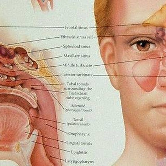 Sinus Cavity Diagram