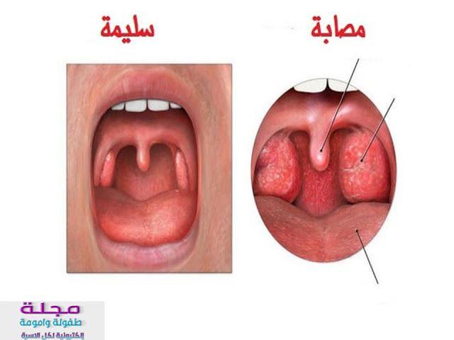 صوره لوز ملتهبه ما هو التهاب البلعوم و التهاب اللوزتين ي عد كل من التهاب البلعوم والتهاب اللوزتين إذا تأث Sore Throat Strep Throat Remedies Soreness