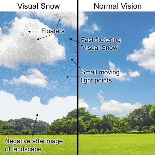 What is Visual Snow and how common is it? - Quora