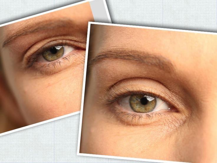 Tighten Dropping Eyelids Related Keywords & Suggestions - Tighten