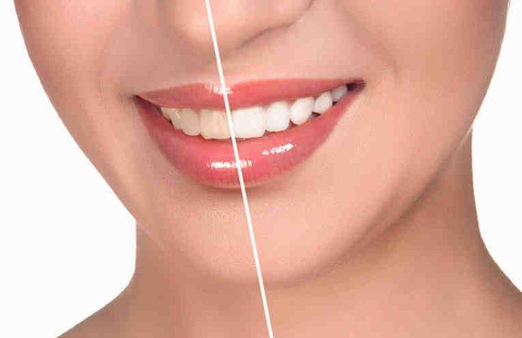 Безопасное отбеливание зубов в домашних условиях. Рецепт отбеливающей пасты-маски.