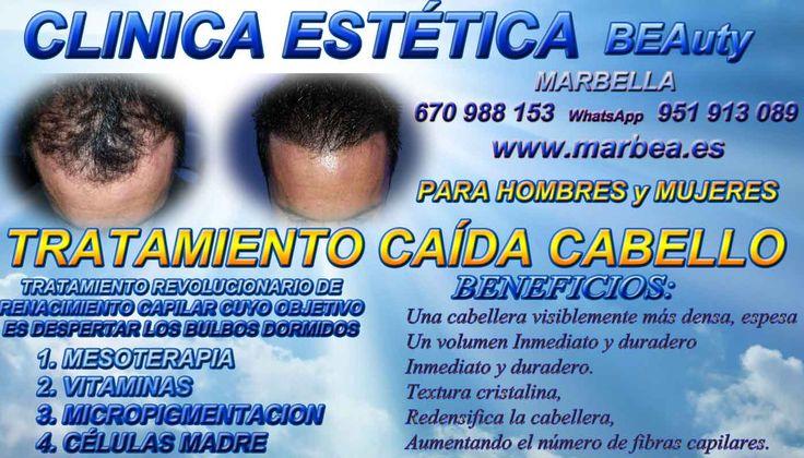 Tratamiento capilar en Marbella Málaga o Madrid dermopigmentacion en Valencia  |en Huelva|en Jaén|en Madrid|en Marbella|en Mijas