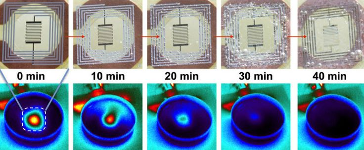 Wireless electronic implants deliver antibiotics, then harmlessly dissolve