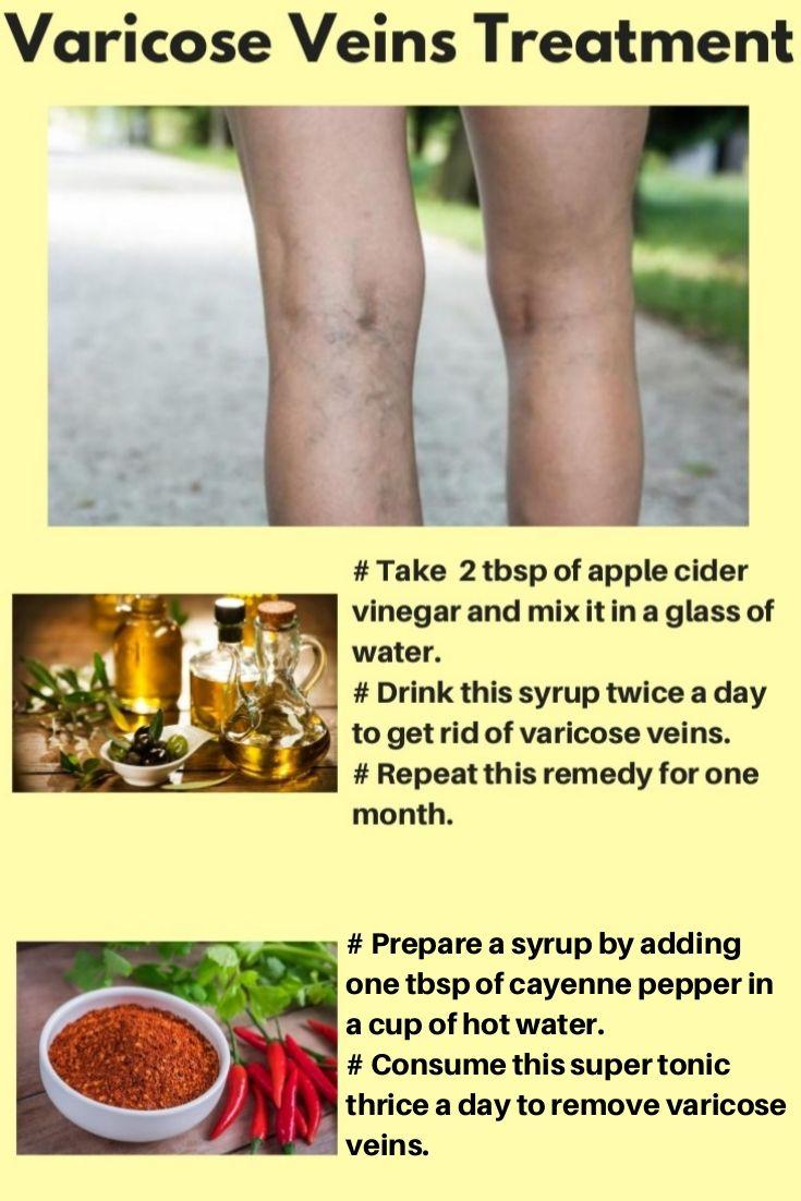 how to treat varicose veins naturally