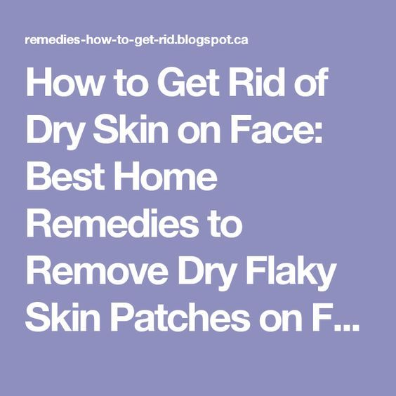 How to Get Rid of Dry Skin on Face: Best Home Remedies to Remove Dry Flaky Skin Patches on Face Naturally | Top Skin Care Remedies to Get Rid