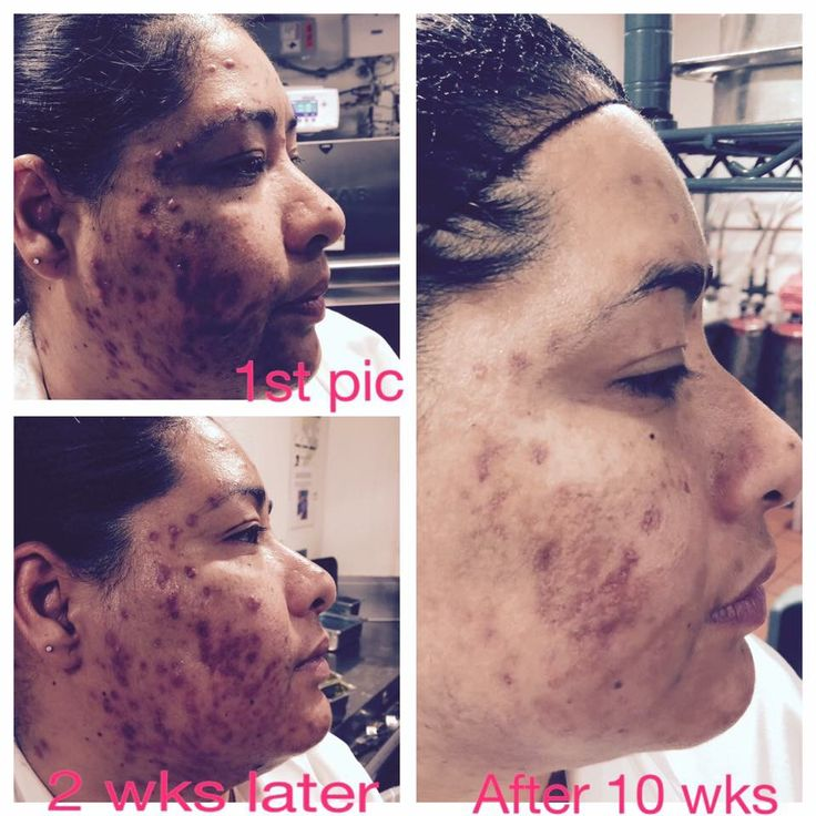 Amazing results seen after using the Luminesce cleanser, serum and moisturizer in only 6 weeks! Get yours today !