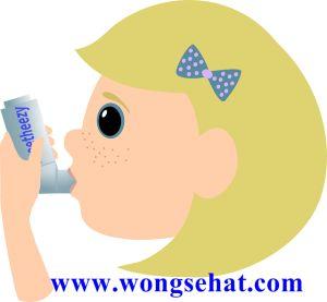Cara Alami Mengobati Penyakit Asma.Salah satu penyakit yang menyerang pada saluran udara adalah asma. Penyakit ini sebenarnya merupakan keadaan peradangan kronis yang terjadi antara lubang pernapasan (hidung atau mulut) hingga paru-paru. Banyak gejala yang akan dialami oleh penderita asma, diantaranya adalah sulitnya menghirup udara dan sesak nafas. Untuk mengatasi hal ini, banyak cara yang bisa dilakukan, diantaranya adalah mengkonsumsi obat dan bantuan alat pernafasan. Selain itu