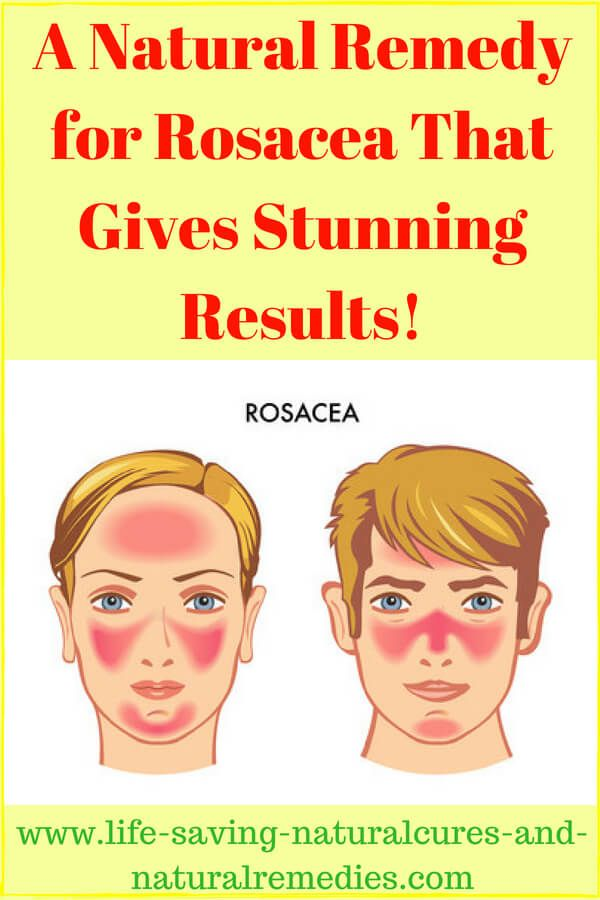 A Natural Remedy For Rosacea That Gives Stunning Results Home