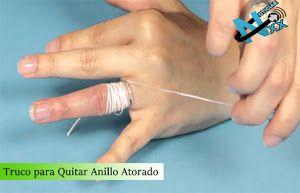 ¿Te has puesto un anillo y no eres capaz de quitártelo? ¡Prueba con este método!