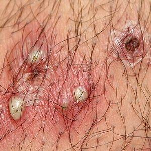folliculitis cures #11
