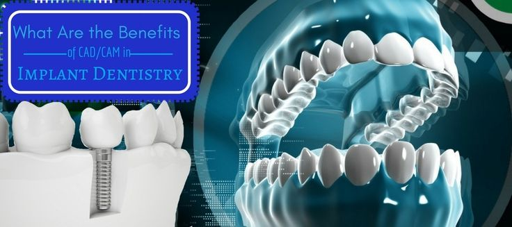 It is impossible to imagine dental implant procedures without the help of CAD/CAM applications. It plays a crucial role in making teeth, implants and dentures.