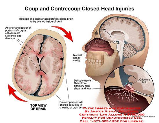17 Best images about nursing on Pinterest | Brain injury ...