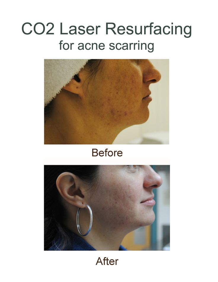 Before and after results photos of CO2 Laser Resurfacing for acne scarring at AH Laser Aesthetics! #co2laserresurfacing #acnescarring #ancescartreatment