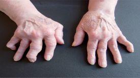 Cette femme a guéri son rhumatisme toute seule ! Découvrez comment … (RECETTE)