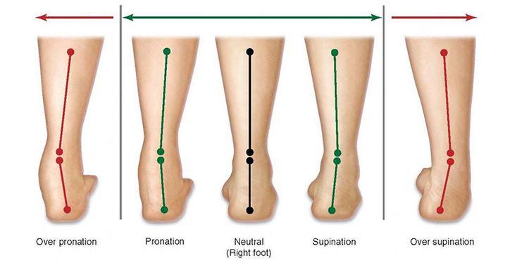 Lábállás diagnosztika