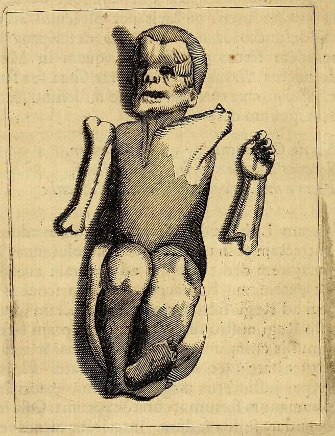 Intrauterine amputation of extremities by amniotic band early in pregnancy, followed by partial calcification and encysting of deceased fetus. Probably would have resulted in a lithopedion if the female survived longer, from Fortunius licetus de monstris. Gerardi Blasii, 1665.