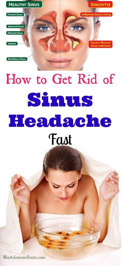 7 Home Remedies for Sinus Headache Fast Relief....  Sinusitis occurs when the four nasal cavities lining is infected, which can result to a nasal blockage and inflammation inhibiting the regular mucus drainage.  A headache provoked by a sinus condition can be extremely bothering. People that have issues with their sinuses are familiar with experiencing often headaches that are triggered by their health condition.  If you are among those people, you should know that there are natural and safe…