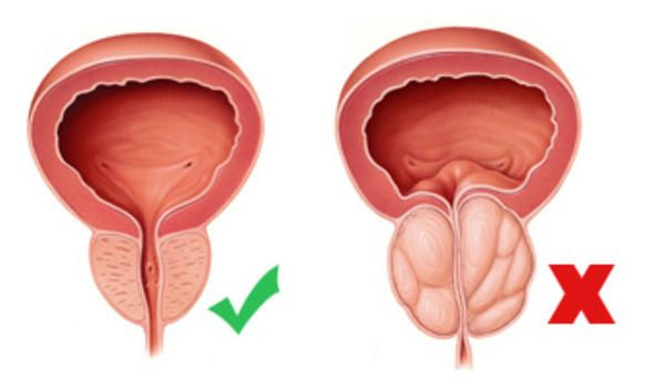 próstata agrandada (hiperplasia prostática benigna hpb)