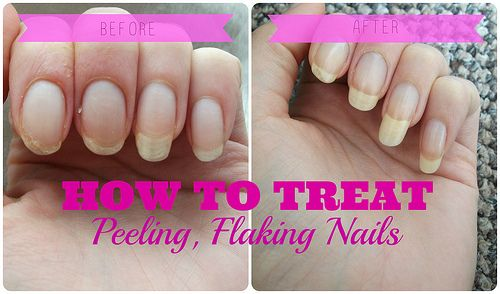 How to treat peeling, flaking nails #nails #treatment #bbloggers