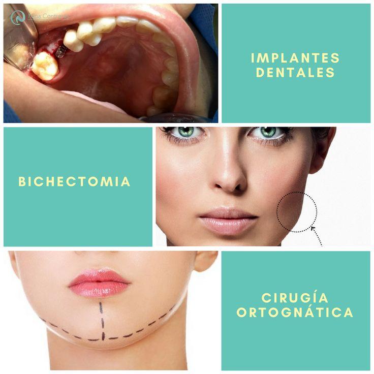 NINA Contreras Cirujano Maxilofacial y Estética Oral Todo un equipo de especialistas a tu disposición! Atrévete a generar cambios: ☎️ 6571629 📲 300 8934528 #cirugía #ortognática #maxilofacial #ortodoncia #diseñodesonrisa #dentalimplants #orthognathicsurgery #surgery #maxillofacialsurgery #orthodontics #smiledesign #smile #teethwhitening #teeth #oralrehabilitation #oral #ninacontreras http://ninacontrerascmf.com/