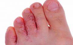 As 5 Principais Doenças Causadas por Fungos