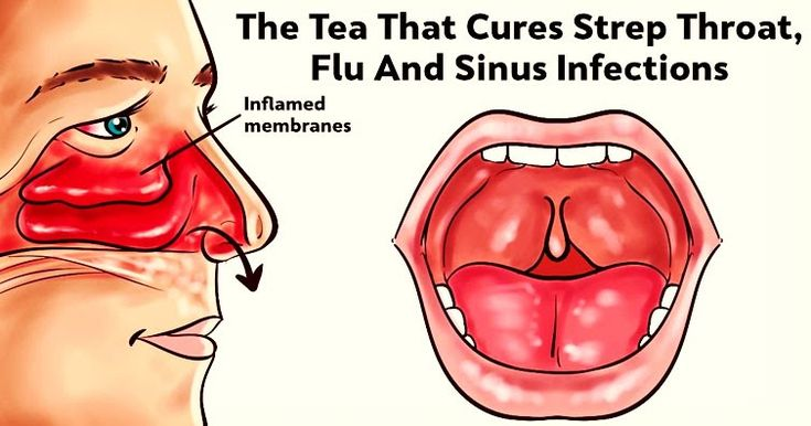 The Tea That Can Help Treat Strep Throat, Flu And Sinus Infections