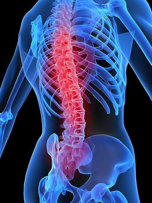 Schmerzen in der Brustwirbelsäule
