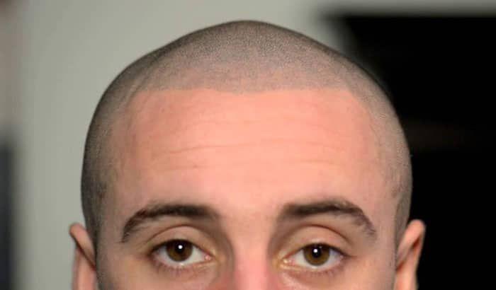 Haartatowierung Kopfhaut Mikropigmentierung Haartatowierung Kopfhaut Mikropigmentierung Hair Tattoos Hair Loss Solutions Hairline Tattoos