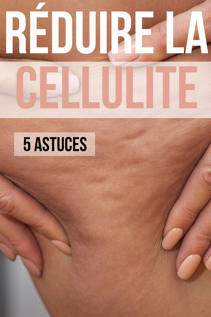 Perdre la cellulite ? C'est difficile oui, mais pas impossible ! zoom sur 5 astuces pour enfin perdre la cellulite ! #cellulite #weightloss #perdredupoids