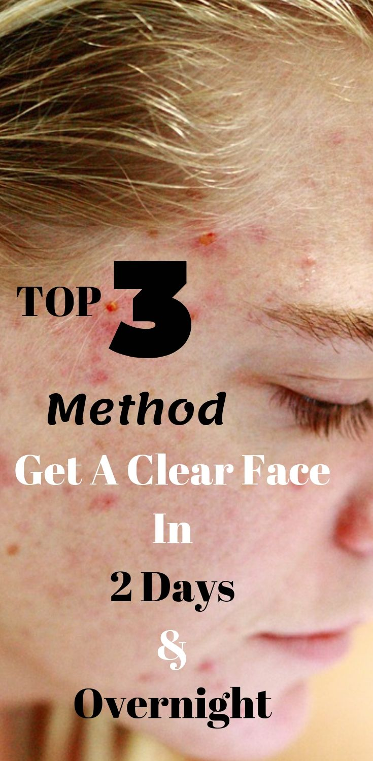 Top 3 Quickest Method – How To Get A Clear Face In 2 Days And Overnight