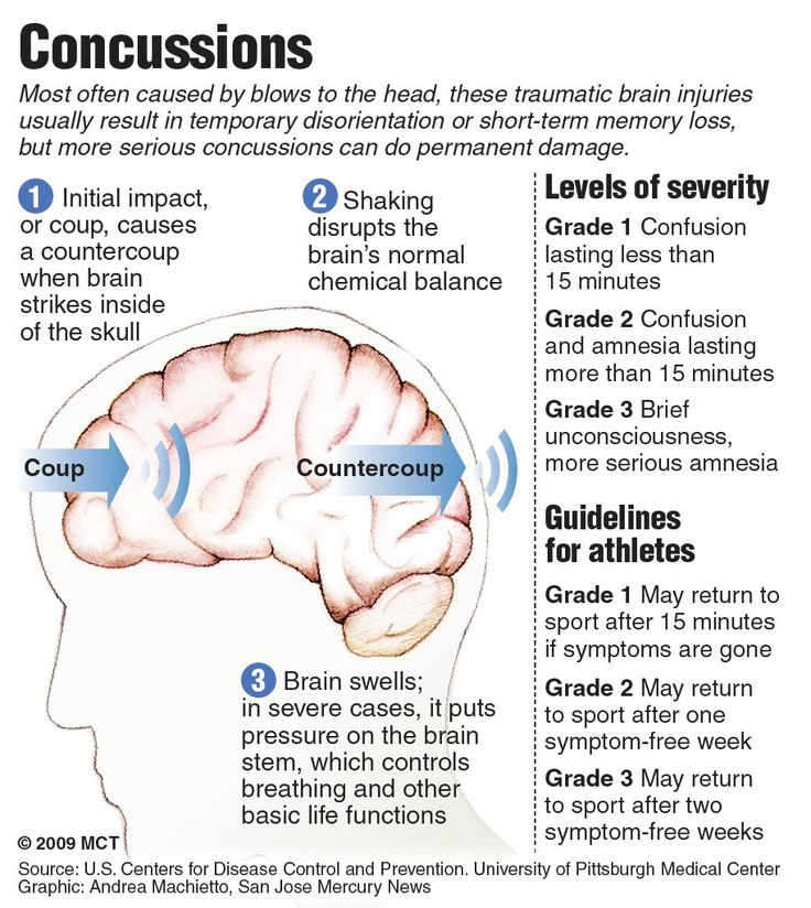 head injury statistic in malaysia Brain injury facts & statistics each year more than 35 million americans will sustain a brain injury, which is the leading cause of injury-related death and disability in the united states traumatic brain injury (tbi) disables six times more people each year than spinal cord injuries, multiple sclerosis, hiv/aids, and breastcancer combined.