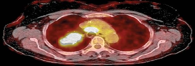 Витамин С убивает раковые клетки