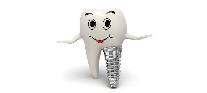 Los #implantes dentales son unas fijaciones de titanio que se colocan en el hueso maxilar y mandíbula con el fin de sustituir a las raíces de las piezas dentales perdidas, lo cual nos permite reemplazar la pieza natural por una pieza artificial de mejor funcionalidad e igual o mejor estética. #identis #implantologia #dentista