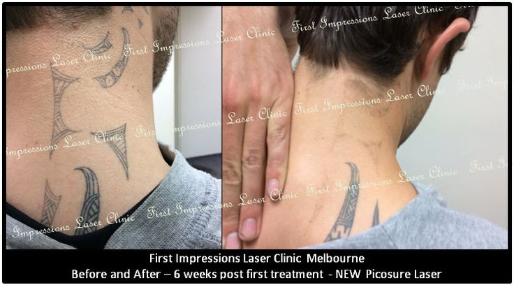Hold onto your hats! This is just six weeks after this young gentleman's FIRST tattoo removal treatment…. amazing! #picosure, #picosurelaser, #tattoo, #tattooremoval, #tattooremorse, #tattooregret, #skin, #tattooremovalmelbourne, #beauty, #fashion