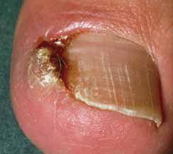 Een ingroeiende nagel is bijzonder pijnlijk. Laat het niet zover komen en maakt tijdig een afspraak bij de pedicure. www.neefjepedicure.nl