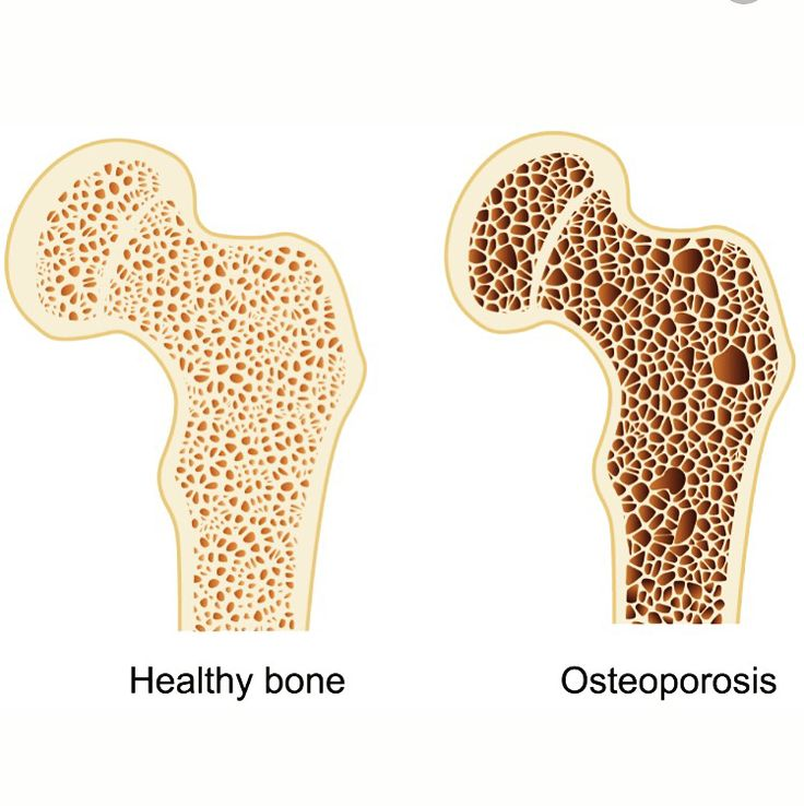 an overview of the bone condition osteoporosis Osteoporosis is a disease where increased bone weakness increases the risk of  a broken bone  a 2011 review reported a small benefit of physical exercise on  bone density of postmenopausal women the chances of having a fracture were .