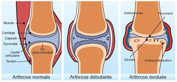 Solutions naturelles contre l'arthrose (mains, hanches, etc) L'arthroseest un vieillissement, une usure des articulations, du cartilage,provoquant uninflammation,voire des petites excroissances osseuses (ostéophytes) au niveau des articulations. A l'heure actuelle, une personne sur quatresouffre au niveau des articulations. L'arthrose la plus Lire la suite →