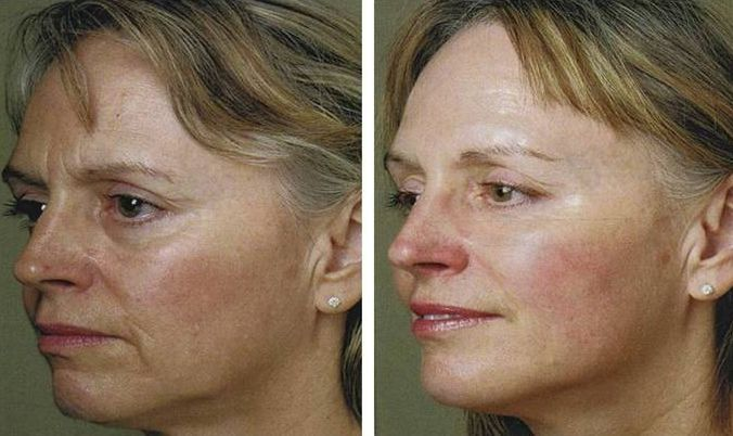Tips On How To Look Years Younger Via Facial Rubbing Exercises