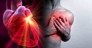 un ataque cardíaco es muy probable cuando se tiene presión arterial alta