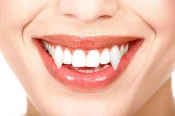 Se vai se fantasiar de vampiro, os dentes não podem faltar! #fantasias #vampiro #halloween #dentadura
