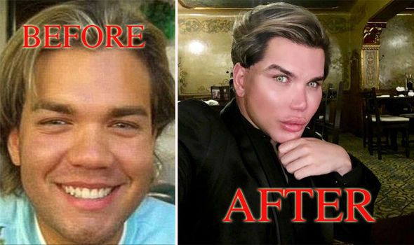 Rodrigo Alves before and after pics: Human Ken doll has had FIFTY procedures