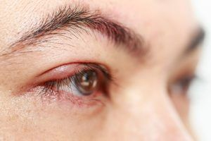 Chalazion (lump in the upper or lower eyelid) causes, symptoms, and treatment