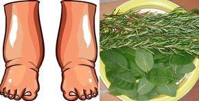 Piedi gonfi: 6 efficaci rimedi naturali | Rimedio Naturale