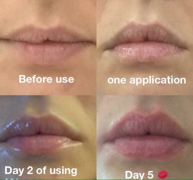 Lip plumper add me on Facebook Samantha's Beauty Box