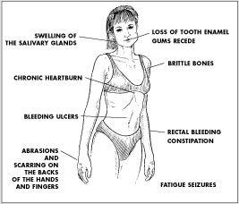 Rapid weight loss liver damage picture 7